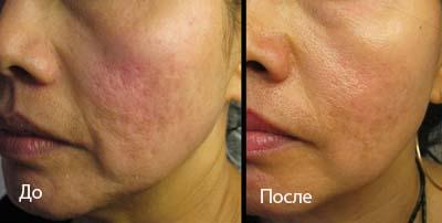 Мезороллер отзывы фото до и после лечение акне Озонолитическая терапия области подбородка 2-я Усадская улица Чебоксары